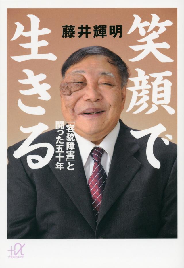 笑顔で生きる 「容貌障害」と闘った五十年